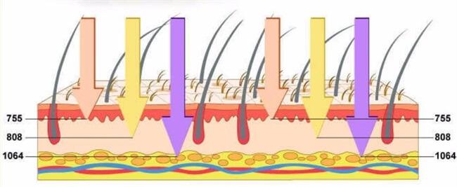 laser de diodo